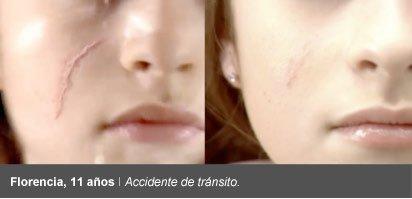 cicatricure antes despues accidente