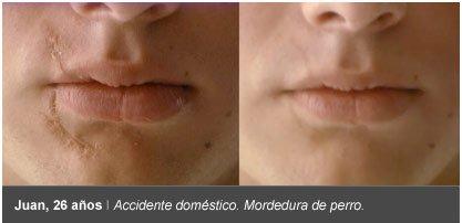 cicatricure antes despues cicatriz mordedura perro
