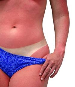 Qumadura solar marcas bikini