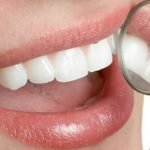 5 Tips para tener dientes mas blancos y sonrisas saludables