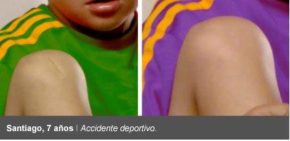 cicatricure antes despues accidente deportivo