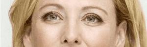 Como deshacerse de las arrugas y lineas de expresion y evitar que aparezcan