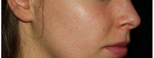 Cicatrices del acne