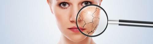 Como saber que tipo de piel tienes