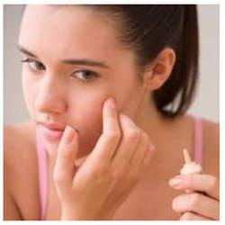 Adolescentes con acne