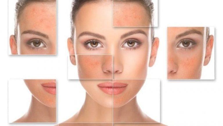 Tratamientos para eliminar las cicatrices del acne