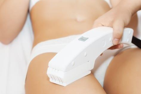 Tratamiento laser para las estrías: Antes y Después