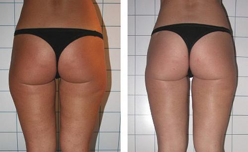 Lipsuccion laser o laserlipolisis antes y despues