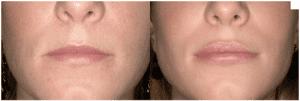 Lo que necesitas saber acerca del aumento de labios