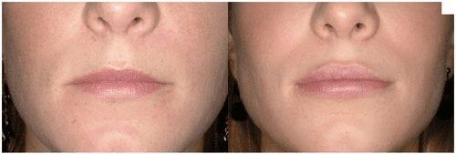 Aumento de labios antes y despues