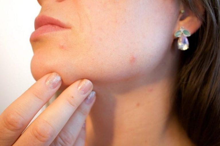 ¿Es contagioso el acne?