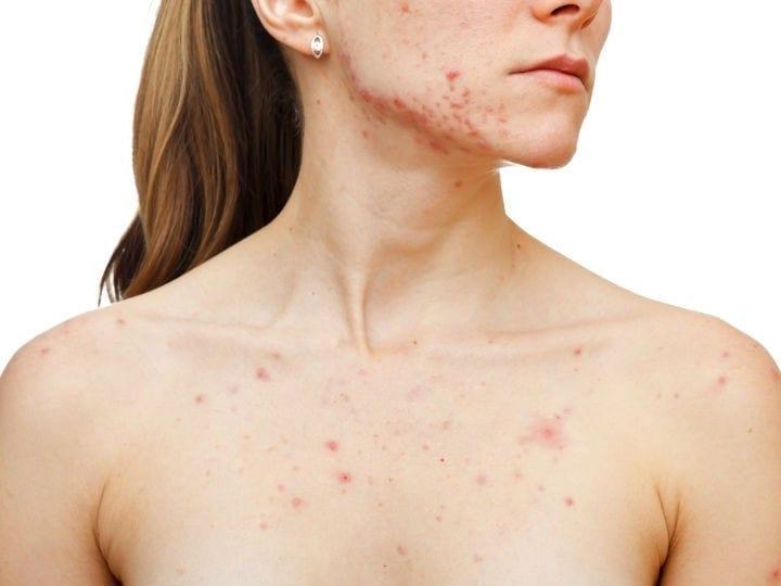 Como eliminar el acne y las espinillas de tus pechos