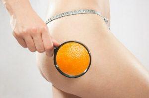 ¿Cual es el tratamiento mas efectivo contra la celulitis?
