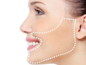 Que es la depilacion definitiva facial