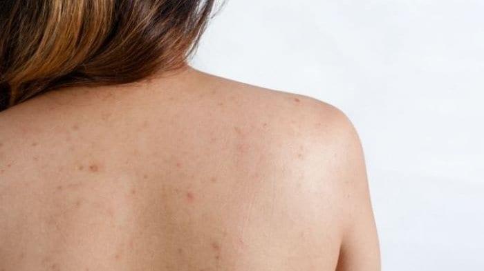 Como eliminar el acne de la espalda