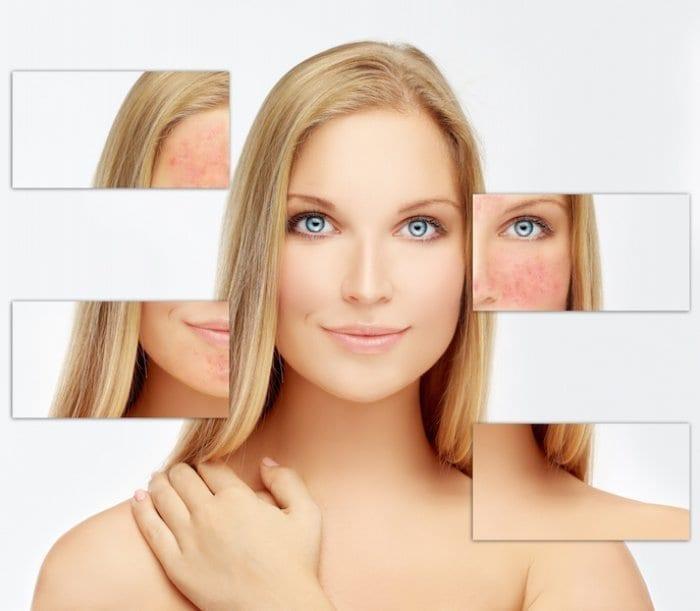 Como tratar el acne en los adultos