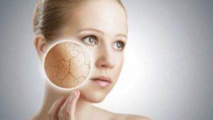 Cuidados para la piel seca