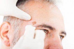 Como eliminar las manchas de la piel