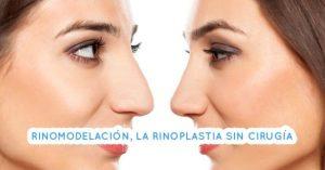 Rinoplastia sin cirugia o rinomodelacion: que es y como se hace