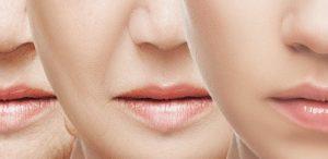 Prevenir arrugas en los labios