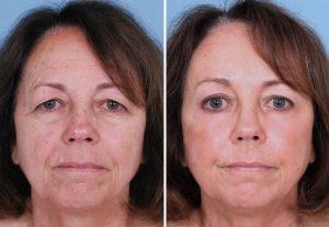 Cirugia de parpados o blefaroplastia