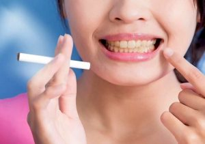 Como quitar las manchas de los dientes