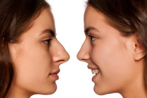 Que es la cirugía estética de la nariz o rinoplastia