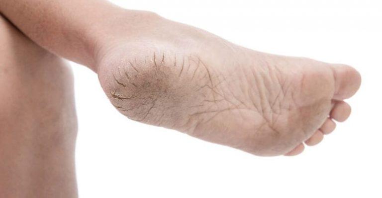 Como reparar los pies o los talones secos o agrietados